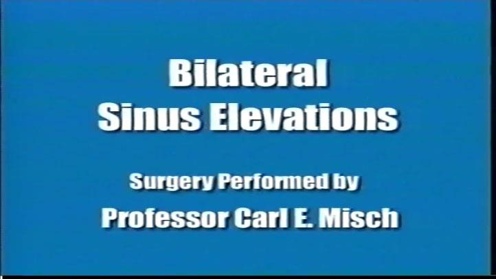 Bilateral Sinus Elevation