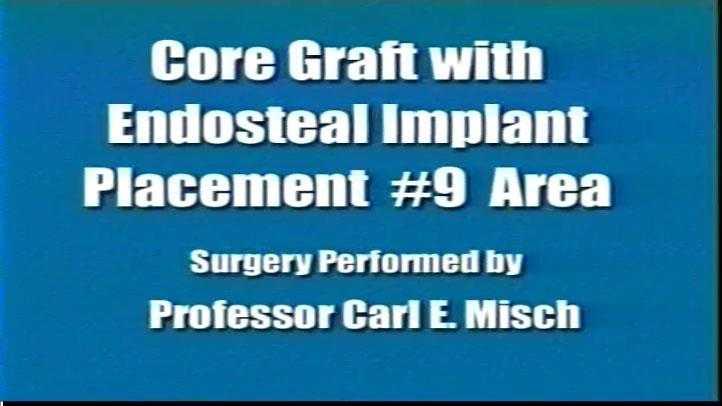 Core Graft Endosteal Implant Placement #9area