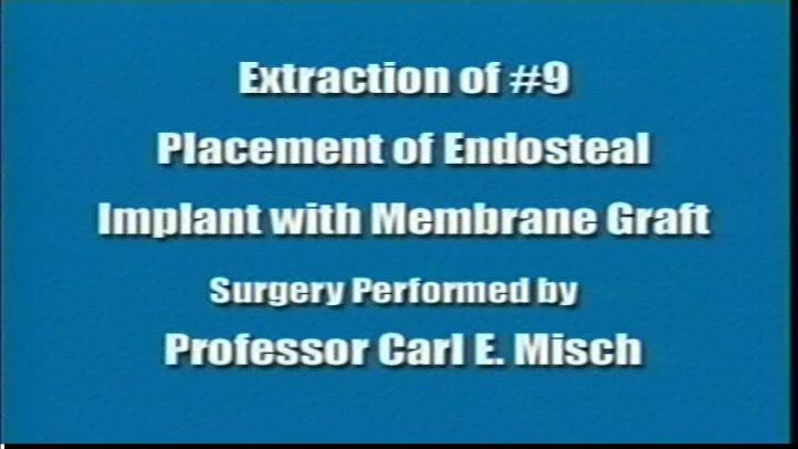 Extraction #9 Placement Endosteal Implant With Membrane