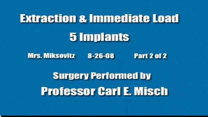 Extraction Immediate Load 5 Implants 2 2 2008 08 26