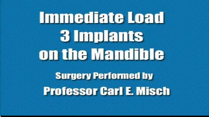 Immediate Load 3 Implants On Mandible