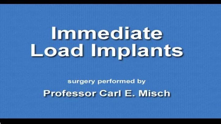 Immediate Load Implants 2009 09 15