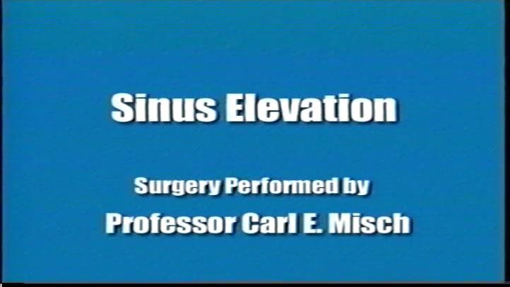 Sinus Elevation 3
