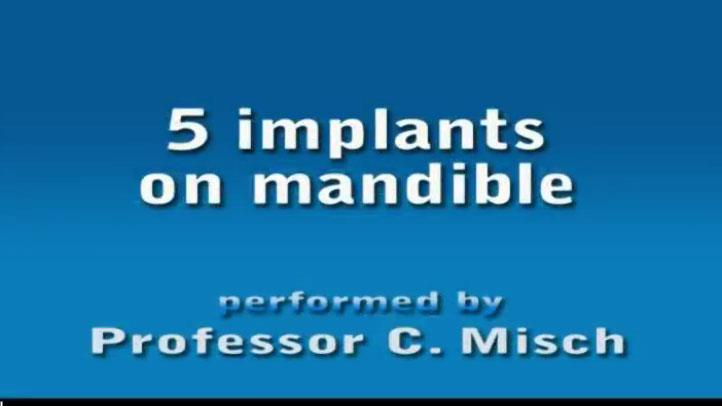 5 Implants On Mandible 1
