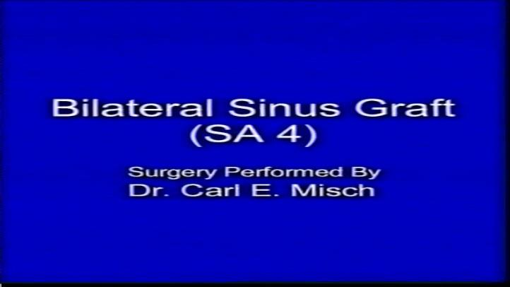 Bilateral Sinus Graft Sa4