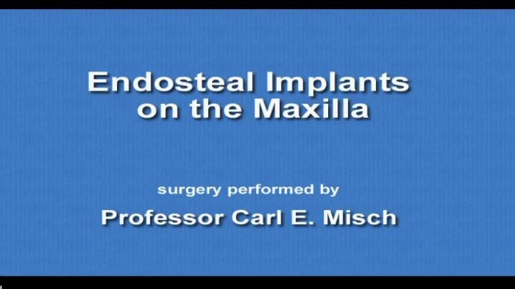 Endosteal Implants On The Maxilla 2009 08 18