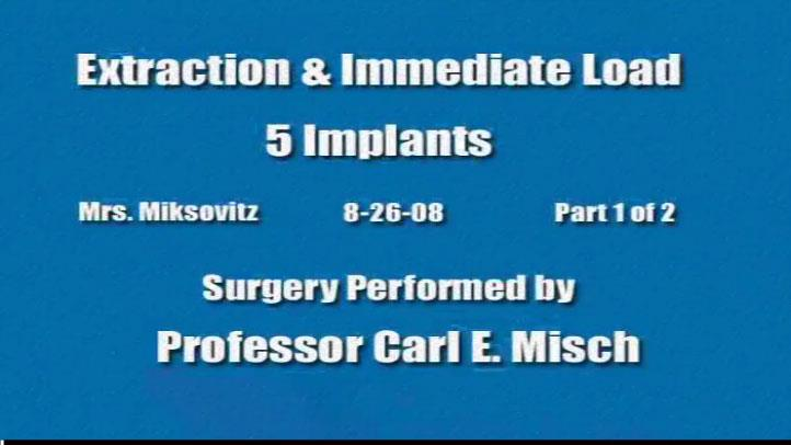 Extraction Immediate Load 5 Implants 1 2 2008 08 26