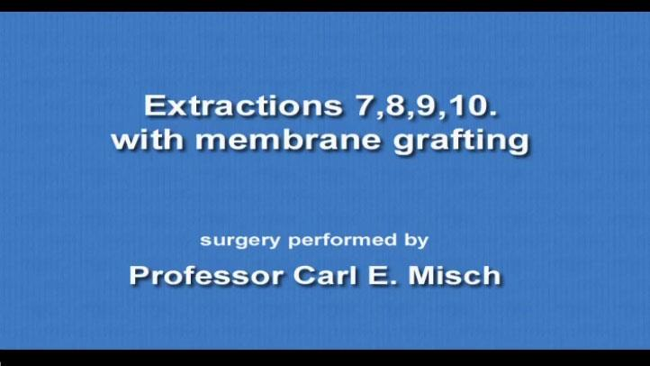 Extractions 78910 Membrane Grafting 2009