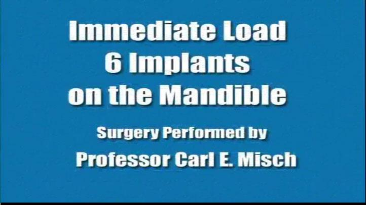 Immediate Load 6 Implants On Mandible