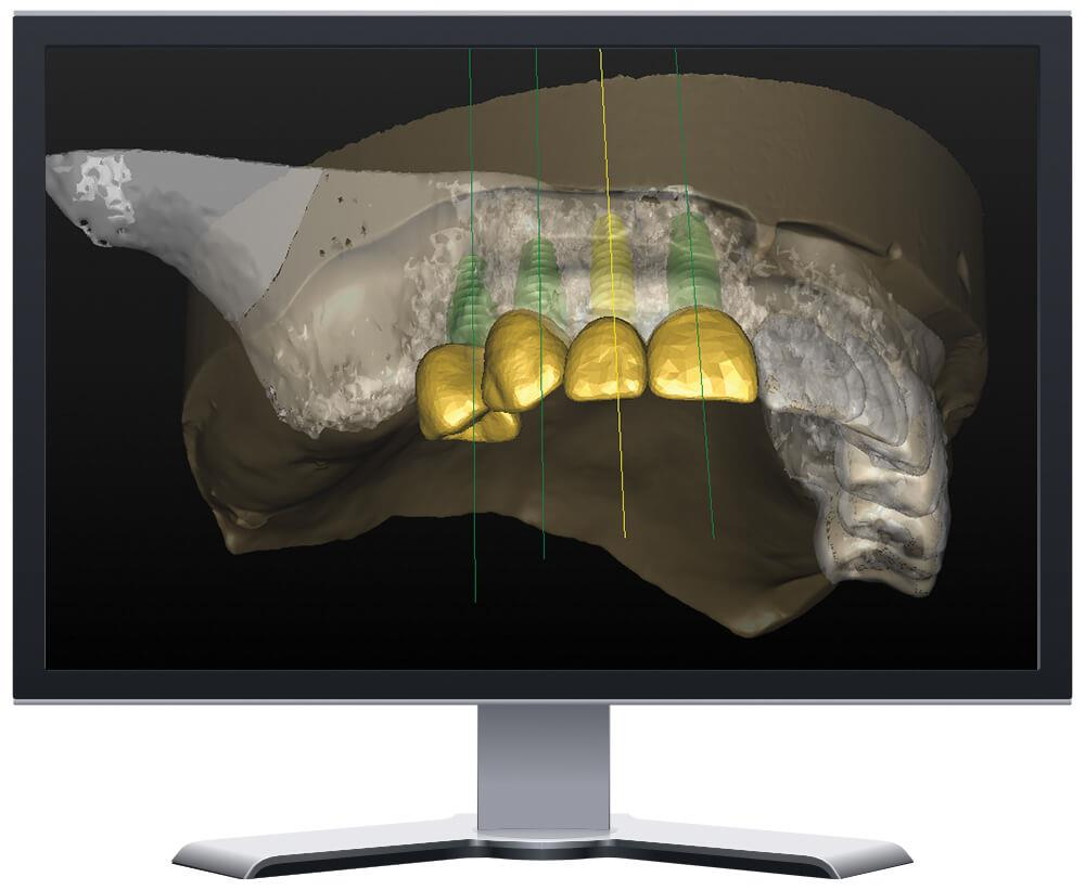 3D Treatment Plan Maxillary Case