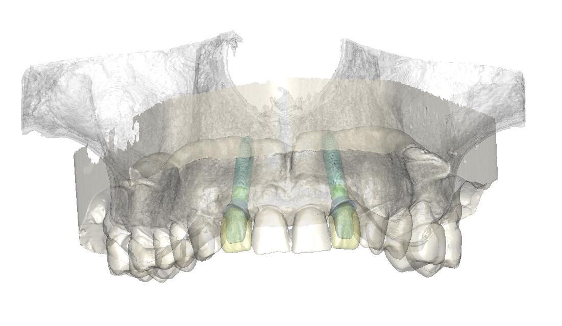 Optically Scanned Model On Maxilla