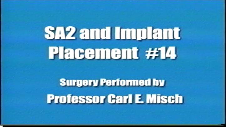 Sa2 Implant Placement #14