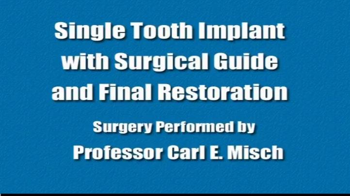 Single Tooth Implant Surgical Guide Final Restoration