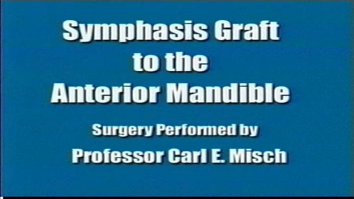 Symphysis Graft Anterior Mandible