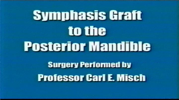 Symphysis Graft Posterior Mandible
