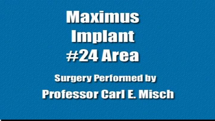 Maxiumus Implant #24 Area
